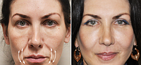 Устранение морщин возле уголков рта | Ботулинотерапия | Омоложение лица