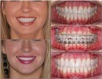 Ортодонтический аппарат-протез