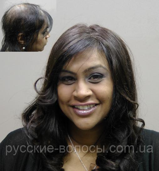 Накладка с имитацией кожи головы