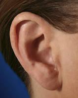Внутриушной слуховой аппарат Audio Service sina)xs Riva 2 - 35 mini-CIC, фото 1
