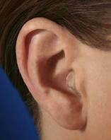 Внутриушной слуховой аппарат Audio Service Mezzo 6 Vega-50 ITC