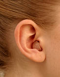 Внутрішньовушний слуховий апарат Audio Service Hype 8G2 Ida Hype 8G2-70 ITC, фото 2