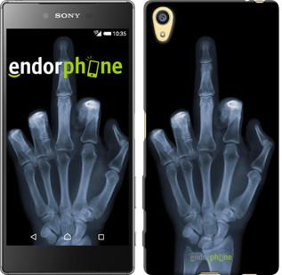 """Чехол на Sony Xperia Z5 Рука через рентген """"1007u-274"""""""