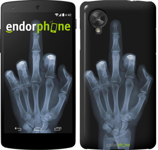 "Чехол на LG Nexus 5 Рука через рентген ""1007c-57"""