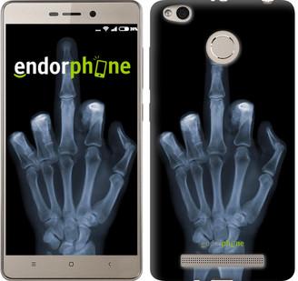 "Чехол на Xiaomi Redmi 3s Рука через рентген ""1007c-357"""