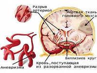 Инсульт,причины возникновения и методы лечения. Профилактика