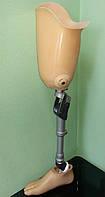Протез после ампутации выше колена с узлом 3R78 и стопой Senator