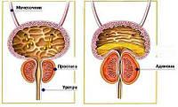Эмболизация артерий аденомы предстательной железы