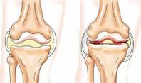 Полный комплект для суставов и связок на 3 месяца (1кг Коллаген + 300г Глюкозамин Хондроитин МСМ)