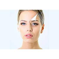 Ботулинотерапия мимических морщин (лоб, межбровье и глаза.)