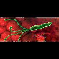 Антитела IgG к Helicobacter Pylori