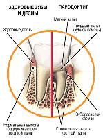Заболевания дёсен и их профилактика