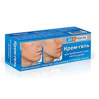 До и после крем-гель для проблемной кожи анти-акне (угревая сыпь) 50 мл.