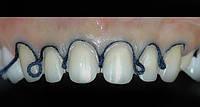 Ретракция десны на 1-м зубе