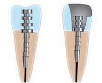 Восстановление культи зуба под коронку на анкерном штифте