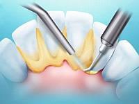 Снятие зубных отложений (ультразвук и полировка пастой) ( 1 челюсть)