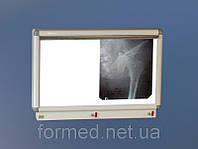 Негатоскоп медицинский НМ-2 Medin (Медин)