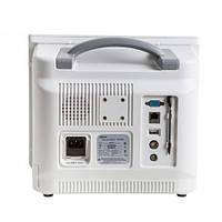 Монитор пациента ВМ800C (Биомед)