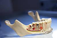 Лечение каналов корней зубов у детей