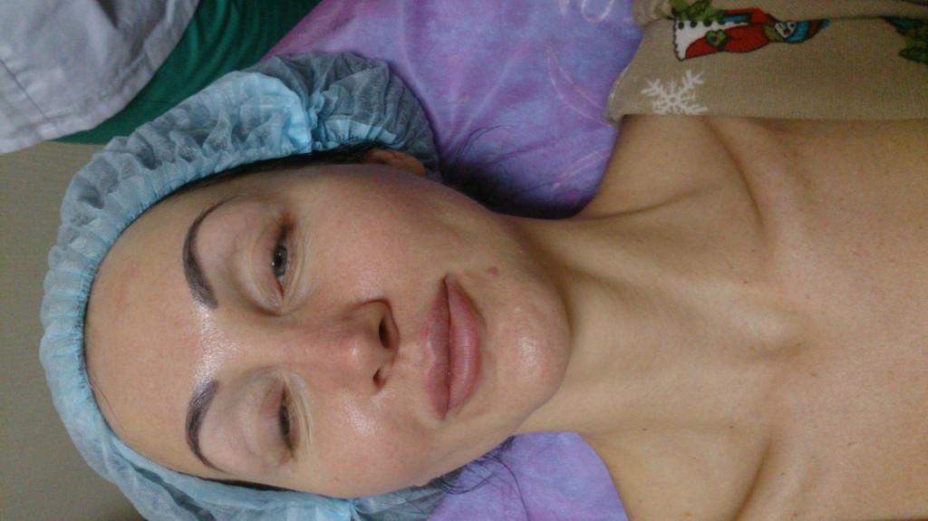 После очищения и до карбокситерапии.