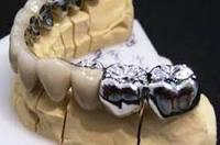 Металлическая цельнолитая коронка с облицовкой (1 ед.)