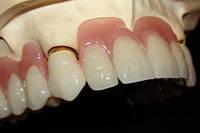 Зуб пластмассовый (1 ед.)