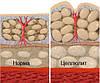 Гомео- мезотерапия целлюлита (отечная линодистрофия)