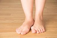 Что такое вальгусная деформация или косточка на ноге (бурсит)