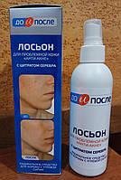 """До и После: лосьон для проблемной кожи """"Анти-Акне"""" - радикальное средство для борьбы с угревой сыпью, 200 мл"""