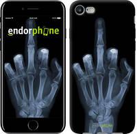 """Чехол на iPhone 7 Рука через рентген """"1007c-336"""""""