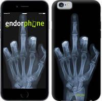 """Чехол на iPhone 6 Рука через рентген """"1007c-45"""""""