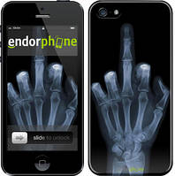 """Чехол на iPhone 5 Рука через рентген """"1007c-18"""""""