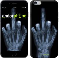 """Чехол на iPhone 6s Plus Рука через рентген """"1007c-91"""""""