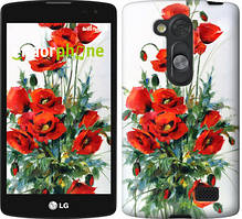 """Чехол на LG L Fino D295 Маки """"523u-240"""""""