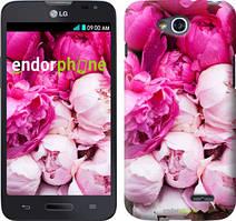 """Чохол на LG K5 X220 Рожеві півонії """"2747c-457"""""""