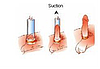 Вакуумная помпа для увеличения пениса Penis Pump, вакуумный увеличитель насос для члена!Опт, фото 4