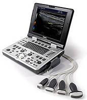 УЗИ аппарат цветной E-CUBE inno (Alpinion)