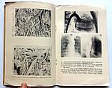 """С.Андреев """"Новое о сердце и сосудах"""". 1961 год, фото 7"""