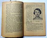 """М.Андреева """"Заболевания щитовидной железы"""". Медгиз. 1961 год, фото 4"""