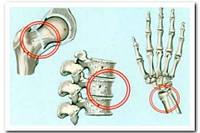 Ювенильный остеопороз.  Продукция Арт Лайф Часть 1