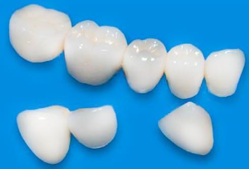 Коронки на зубы - цена установки.