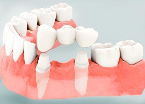 Сколько будет, стоит установка зубных мостов