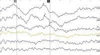 Объективная диагностика нарушений слуха у детей с рождения - КСВП (ABR) по воздушной проводимости, фото 1