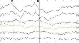 Объективная диагностика нарушений слуха у детей с рождения - КСВП (ABR) по воздушной проводимости