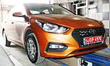 Защита картера двигателя и акпп Hyundai Accent  2017-, фото 9