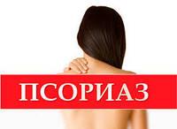 Лечение псориаза, витилиго, дерматита, демодекса