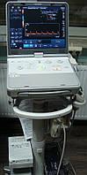 Аппарат УЗИ для ультразвуковой диагностики USG Toshiba Viamo Ultrasonograf Portable 2013