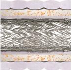 Матрас Комфорт плюс хард двусторонний с 2-мя рамами из стали и еврокаркасом