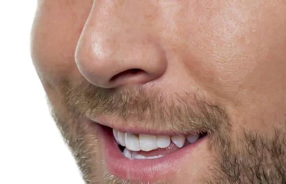 Восковая депиляция волос в носу, фото 2