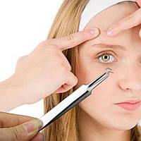 Щипцы для чистки пор от прыщей и черных точек (косметологический пинцет для очистки кожи)